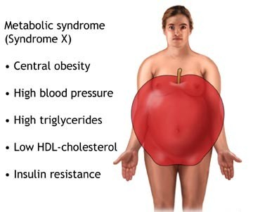 Belly Visceral Fat Being Overweight Will Lead To Metabolic Syndrome And Diabetes High Cholesterol And High Blood Pressure Four Packs For Oggies