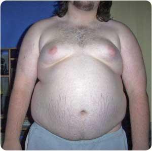 belly-fat-obesity
